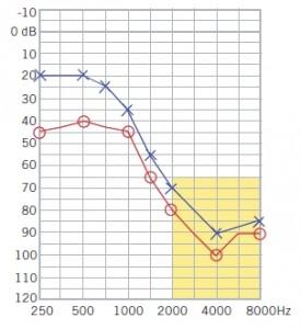 Figura 67. Perdita uditiva in discesa. L'area evidenziata in giallo mostra una marcata perdita di udito sulle frequenze acute.